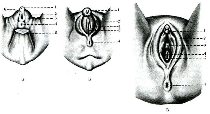 А - эмбрион 7 нед: 1 - клитор;