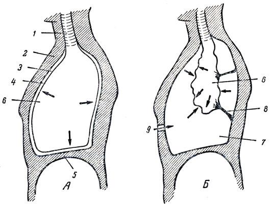 пневмотораксе (Б) (схема).