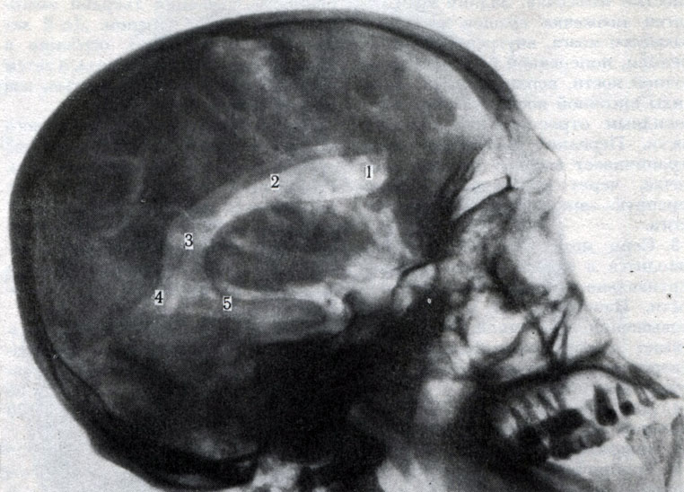 Пневмоэнцефалография фото