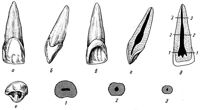 Рис. 90. Правый медиальный верхний резец. а - вестибулярная поверхность; б - медиальная поверхность; в - язычная поверхность; г - вестибуло-язычный срез; д - медио-дистальный срез (цифрами указаны уровни и поперечных срезов); е - режущая поверхность; 2, 2, 3 - формы поперечных срезов на уровне коронки, средней и верхней трети корня