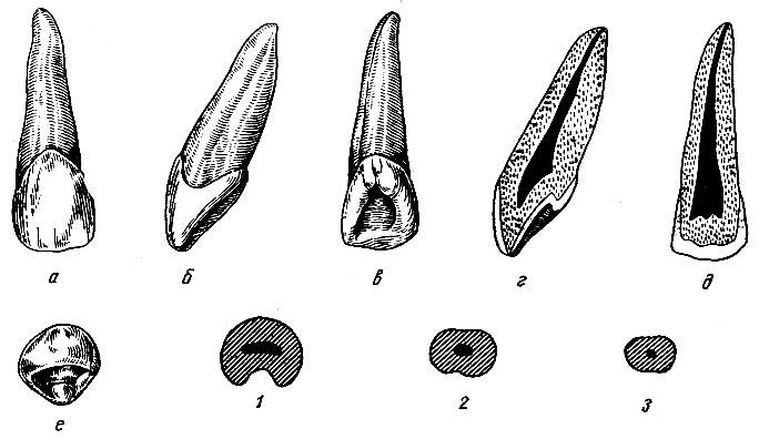 Рис. 92. Правый латеральный верхний резец. а - вестибулярная поверхность; б - медиальная поверхность; в - язычная поверхность; г - вестибуло-язычный срез; д - медио-дистальный срез; е - режущая поверхность; 1, 2, 3 - формы поперечных срезов