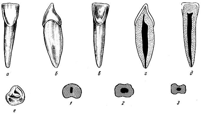 Рис. 94. Правый латеральный нижний резец. а - вестибулярная поверхность; б - медиальная поверхность; в - язычная поверхность; г - вестибуло-язычный срез; д - медио-дистальный срез; е - режущая поверхность, 1, 2, 3 - формы поперечных срезов
