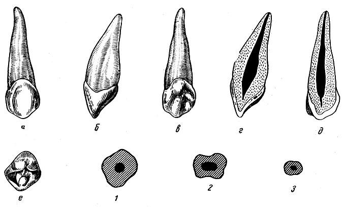 Рис. 95. Правый верхний клык. а - вестибулярная поверхность; б - медиальная поверхность; в - язычная поверхность; г - вестибуло-язычный срез; д - медио-дистальный срез; е - режущая поверхность; 1, 2, 3 - формы поперечных срезов