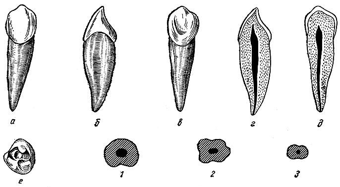 Рис. 96. Правый нижний клык. а - вестибулярная поверхность; б - медиальная поверхность; в - язычная поверхность; г - вестибуло-язычный срез; д - медио-дистальный срез; е - режущая поверхность; 1, 2, 3 - формы поперечных срезов
