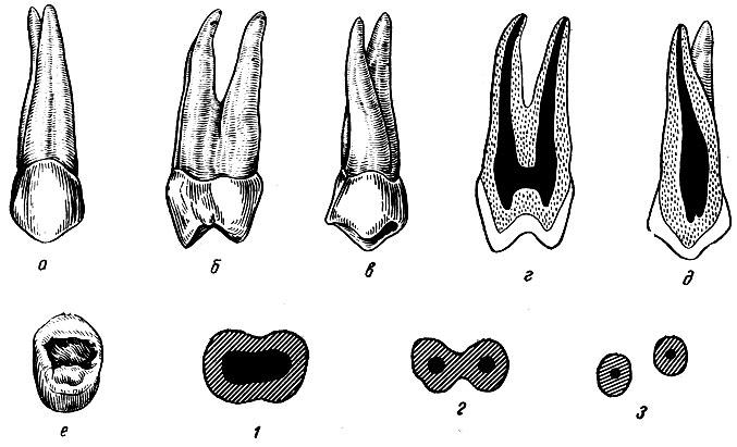 Рис. 97. Правый первый верхний премоляр. а - вестибулярная поверхность; б - медиальная поверхность; в - язычная поверхность; г - вестибуло-язычный срез; д - медио-дистальный срез; е - жевательная поверхность; 1, 2, 3 - формы поперечных срезов