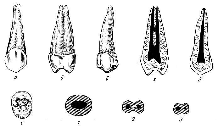 Рис. 98. Правый второй верхний премоляр. а - вестибулярная поверхность; б - медиальная поверхность; в - язычная поверхность; г - вестибуло-язычный срез; д - медио-дистальный срез; е - жевательная поверхность; 1, 2, 3 - формы поперечных срезов
