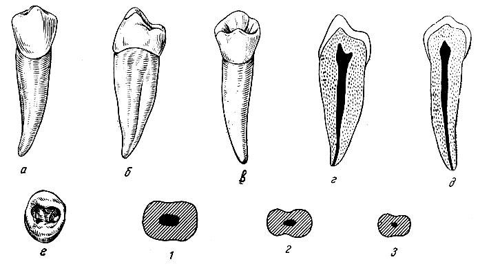 Рис. 99. Правый первый нижний премоляр. а - вестибулярная поверхность; б - медиальная поверхность; в - язычная поверхность; г - вестибуло-язычный срез; д - медио-дистальный срез; е - жевательная поверхность, 1, 2 3 - формы поперечных срезов