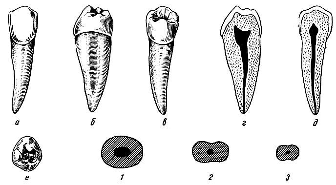 Рис. 100. Правый второй нижний премоляр. а - вестибулярная поверхность; б - медиальная поверхность; в - язычная поверхность; г - вестибуло-язычный срез; д - медио-дистальный срез; е - жевательная поверхность, 1, 2, 3 - формы поперечных срезов
