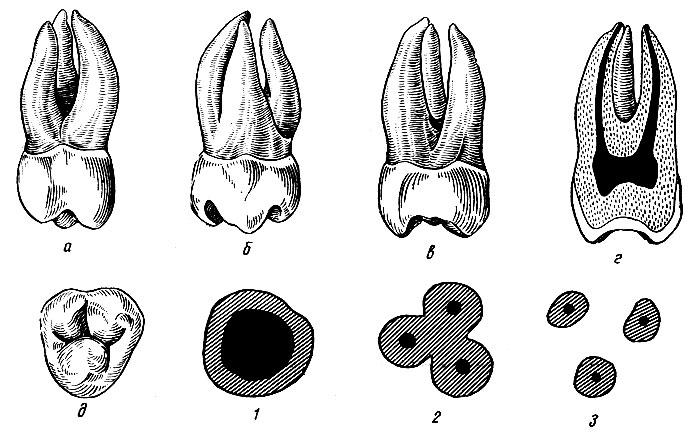 Рис. 103. Правый третий верхний моляр. а - вестибулярная поверхность; б - язычная поверхность; в - медиальная поверхность; г - вестибуло-язычный срез; д - жевательная поверхность; 1, 2, 3 - формы поперечных срезов