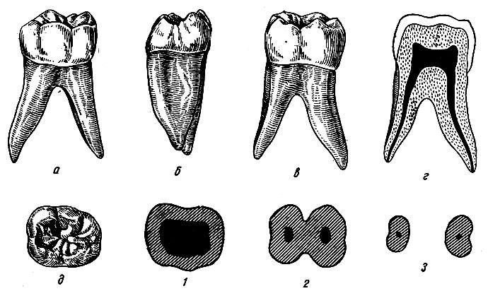 Рис. 104. Правый первый нижний моляр. а - вестибулярная поверхность; б - язычная поверхность; в - медиальная поверхность; г - вестибуло-язычный срез; д - жевательная поверхность; 1, 2, 3 - формы поперечных срезов