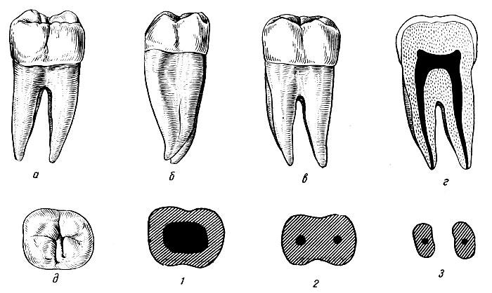 Рис. 105. Правый второй нижний моляр. а - вестибулярная поверхность; б - медиальная поверхность; в - язычная поверхность; г - медио-дистальный срез; д - жевательная поверхность; 1, 2, 3 - формы поперечных срезов