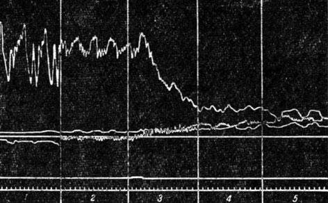 Рис. 55. Изменения кровообращения при эмболии ликоподием. Верхняя кривая - артериальное давление; нижние кривые - венозное давление. 1 - норма; 2 - компенсаторное ускорение пульса; повышение давления в венах в начальной стадии при незначительных эмболических явлениях; 3, 4 и 5 - падение артериального и значительное повышение венозного давления при нарастании эмболии в малом круге кровообращения