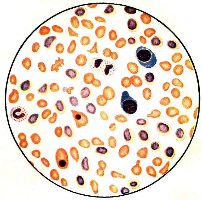 Ретикулоцитоз фото