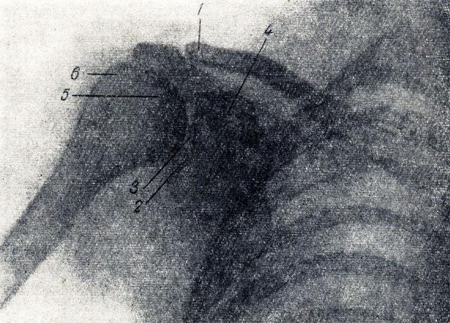 Рис. 43. Рентгенограмма плечевого сустава. 1 - ключица; 2 - суставная впадина лопатки; 3 - суставная щель плечевого сустава; 4 - клювовидный отросток; 5 - головка плечевой кости; 6 - большой бугорок