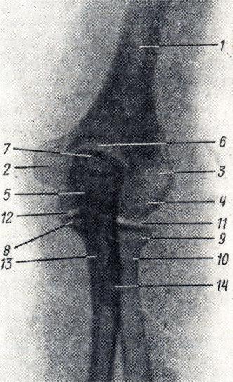 Рис. 45. Рентгенограмма локтевого сустава женщины 25 лет (задняя проекция). 1 - диафиз плечевой кости: 2 - медиальный надмыщелок; 3 - латеральный надмыщелок; 4 - capitulum humeri; 5 - блок; 6 - локтевая ямка; 7 - локтевой отросток; 8 - венечный отросток локтевой кости; 9 - головка лучевой кости; 10 - шейка лучевой кости; 11 - плечелучевой сустав; 12 - плечелоктевой сустав; 13 - диафиз локтевой кости; 14 - бугристость лучевой кости