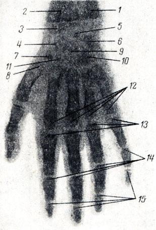 Рис. 46. Рентгенограмма кисти мальчика 6 лет. 1 - диафиз локтевой кости; 2 - диафиз лучевой кости; 3 - эпифиз лучевой кости; 4 - ядро окостенения ладьевидной кости; 5 - полулунная; 6 - трехгранная; 7 - os trapezium. 8 - эпифиз I пястной кости; 9 - головчатая; 10 - крючковидная; 11 - os trapezoideum; 12 - эпифизы II-V пястных костей; 13 - эпифизы проксимальных фаланг; 14 - эпифизы средних фаланг; 15 - эпифизы дистальных фаланг