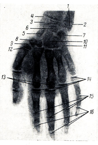 Рис. 47. Рентгенограмма кисти мальчика 9 лет. 1 - эпифиз локтевой кости; 2 - метаэпифизарный хрящ; 3 - эпифиз лучевой кости; 4 - метаэпифизарный хрящ; 5 - ладьевидная кость; 6 - полулунная; 7 - трехгранная; 8 - os trapezium; 9 - os trapezoideum; 10 - головчатая; 11 - крючковидная; 12 - эпифиз I пястной кости; 13 - эпифизы пястных костей; 14 - эпифизы проксимальных фаланг; 15 - эпифизы средних фаланг; 16 - эпифизы дистальных фаланг