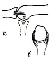 Рис. 49. Положение боковых связок межфалангового сустава. а - вид сбоку (при разгибании и сгибании); б - вид снизу (при сгибании)