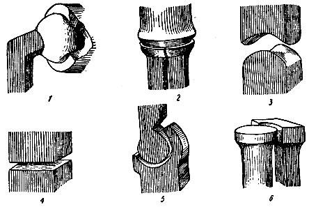 формы суставов (схема).