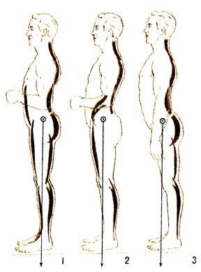расположение тела во время позы 69