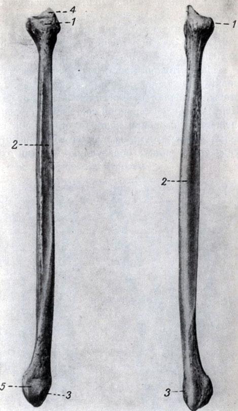малая берцовая кость болит