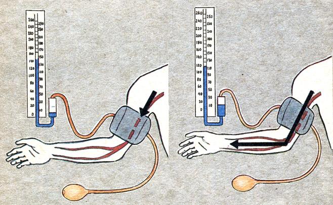 Флебодиа 600 отзывы при варикозе ног и в малом тазу